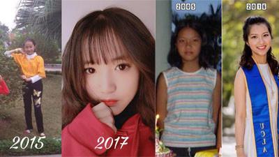 Chịu đau đớn suốt 6 tháng phẫu thuật thay đổi ngoại hình, cô gái 9X tin rằng 'xinh đẹp là chuyện sống còn'