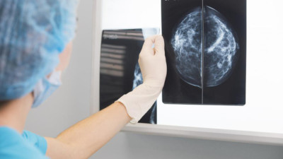 Mỹ: tỷ lệ tử vong do ung thư vú giảm đến hơn 50% vào năm 2018, chúng ta học được điều gì từ đây?