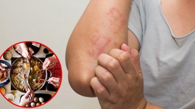 Cô gái người Đài Loan bị ngứa đến chảy cả máu chỉ vì món ăn
